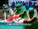 衝撃告白:想像を絶する中国の生体臓器狩りの全過程