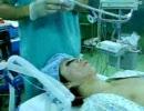 トラキライトで気管挿管