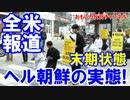 【米国紙がヘル朝鮮を報道】 差別が酷く、仕事がなく、移民を望む民族! thumbnail