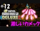 【実況】激しいカメック キノピコで冒険する時が来た #12