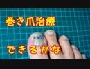 061 【ビューティー&ヘルス】巻き爪治療【できるかな】