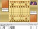 気になる棋譜を見よう1552(藤井九段 対 阿部八段)