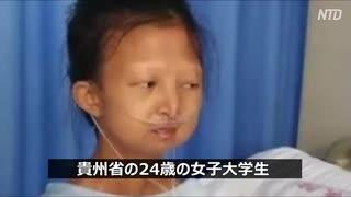 体重21キロ! 中国で極貧の女子大生が死亡・寄付金100万元の行方は?