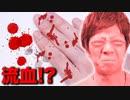 画鋲1000個で流血?ぶった切リ