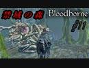 ブラッドボーン 実況 #11 禁域の森へ突入するが…【Bloodborne】