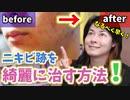 【美肌】ニキビ跡・シミを少しでも治す方法!やっぱりこれだ!!