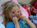 顔の皮膚がグロくなっている外国人の子供・幼女
