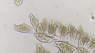 ホモと見る水中微生物「エピスティリス」