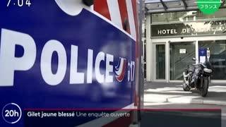 暴徒に向けた警察のゴム弾が一般デモ参加者の目に当たり失明させ...
